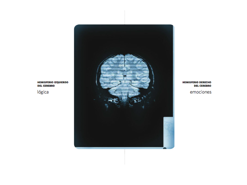 Cerebro.043